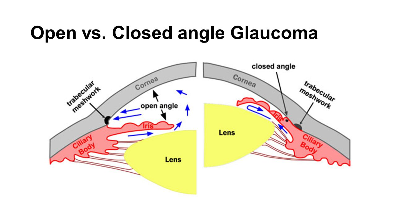 use of acetazolamide in conjunction with pilocarpine for the treatment of acute closed angle glaucom Acute angle closure glaucoma this condition is usually diagnosed quite readily because of the pain, redness and reduced vision the pupil of the eye is dilated and the pressure inside the eye is.